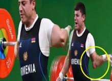 คลิปสุดสยอง!นักยกน้ำหนัก ข้อศอกพลิก หักไปด้านหลัง ระหว่างแข่งโอลิมปิก