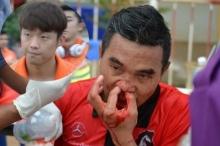 สุดโหด! แข้งเกาหลีของขึ้นเตะปีกโปลิศดั้งหักคาสนาม